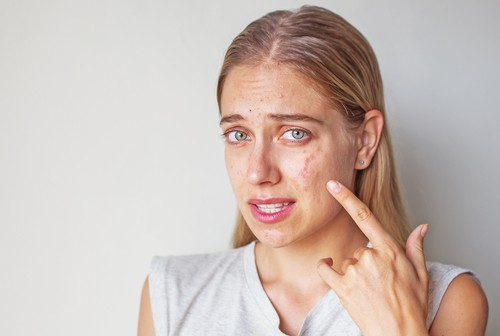 Adult Acne and Menopause