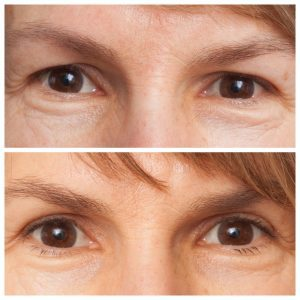 Why I can't believe my eyes – Blepharoplasty was the answer