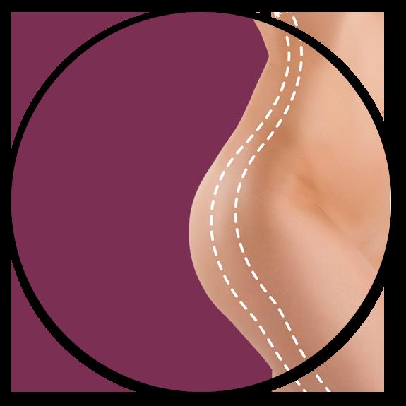 Liposuction Surrey
