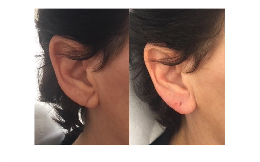 Ear lobe crease, torn earlobe, ear lobe droop or earlobe deformity?