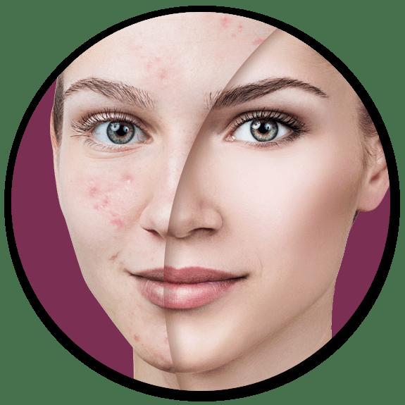 acne treatment surrey