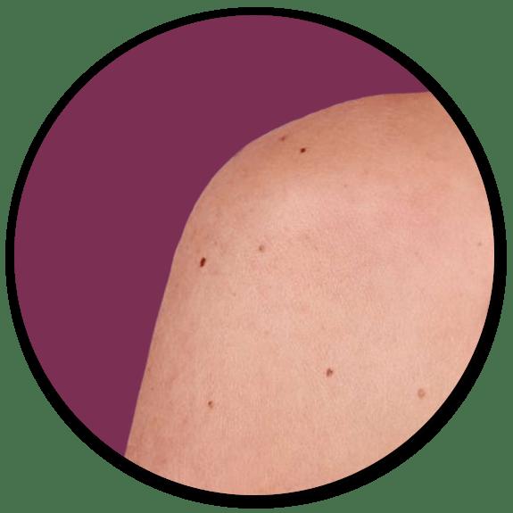 mole removal surrey