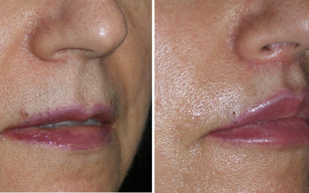 Did you know you can have beautiful lips permanently?