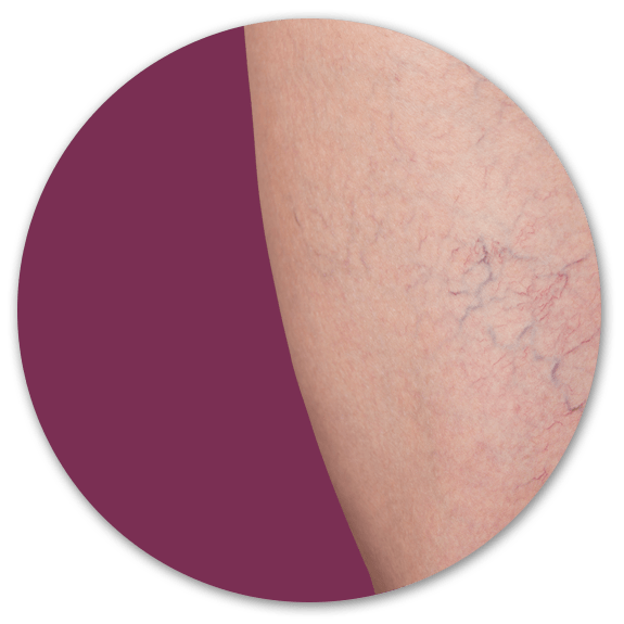 sclerotherapy surrey