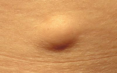 What is a sebaceous cyst?