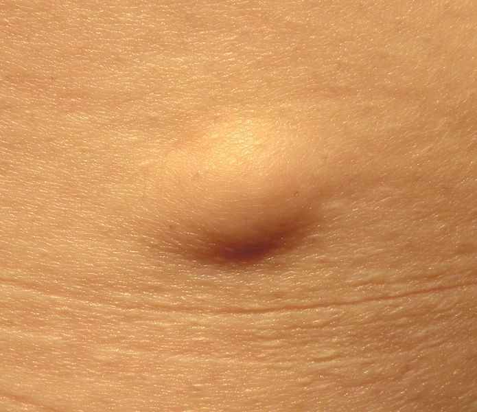 What is a sebaceous cyst? - Harley Street Skin Clinic Reigate