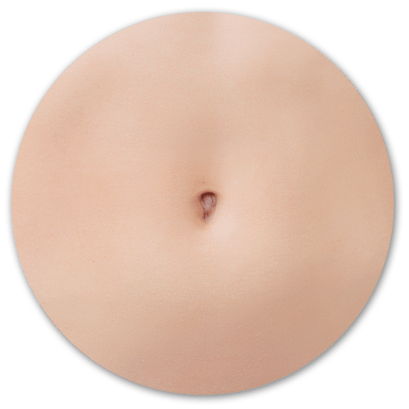 belly button surgery Surrey