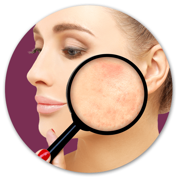 Cosmetic Surgery Clinic in Surrey