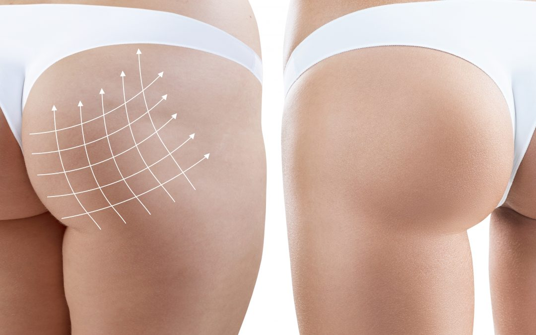 In the news for all the right reasons – the non-surgical butt lift