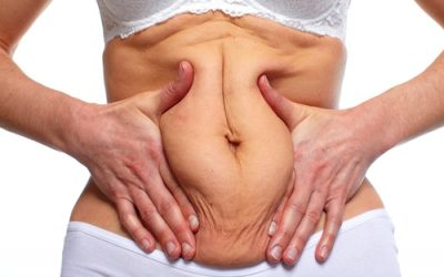 Six reasons to consider a Mini Tummy Tuck