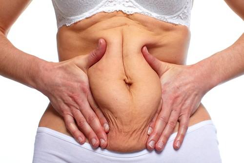 Six reasons to consider a Mini Tummy Tuck