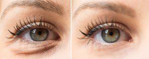 dark circles under your eyes