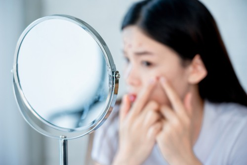 Cystic Acne –  it might be time to try a quick fix spot injection