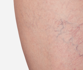 How to get the best from Sclerotherapy (spider vein treatment)