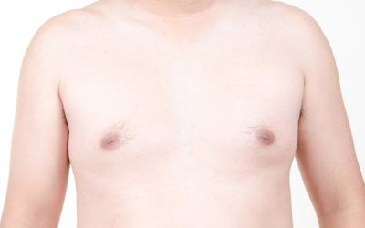 Male Breast Surgery – Gynaecomastia