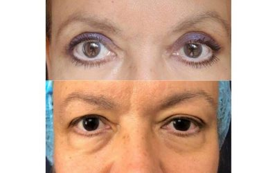 Leave those tired ageing eyes behind with Blepharoplasty