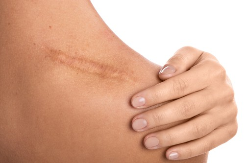 Scars – how successful can treatment be?